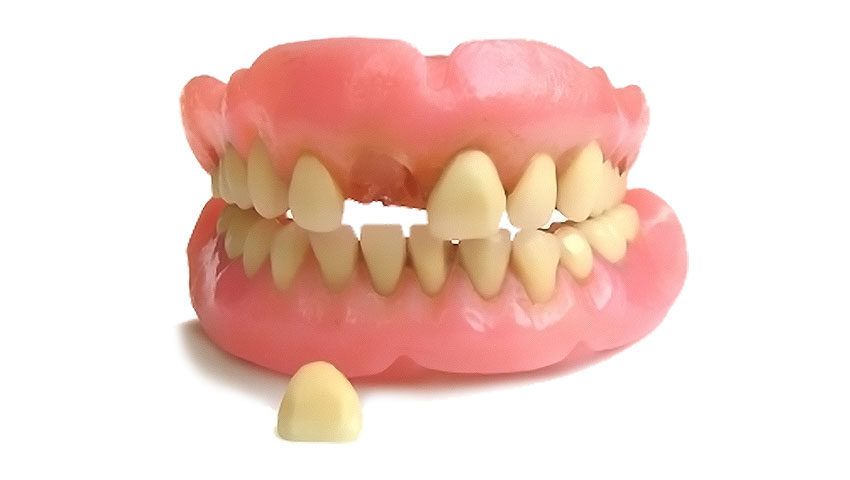 Why is Denture So Important?